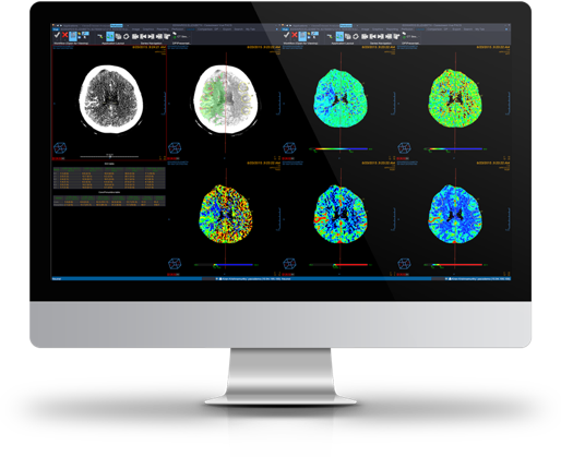 Clinical Collaboration neurology images