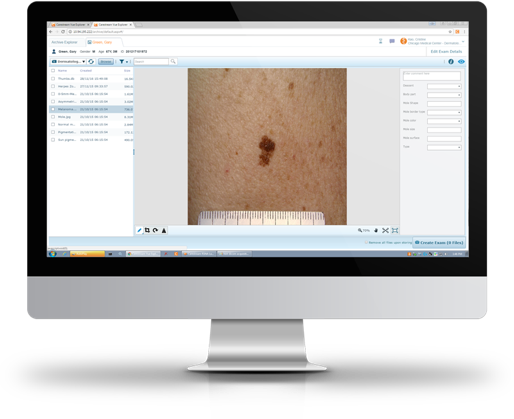 Clinical Collaboration dermatology images