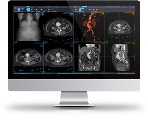 Clinical Collaboration radiology images